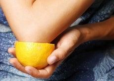 uso-del-limone-nei-trattamenti-di-bellezza-500x334