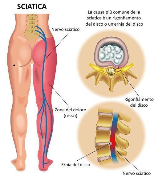 S4 s5 reparto cervicale di una spina dorsale