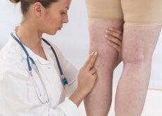 dottoressa e gambe con ritenzione idrica