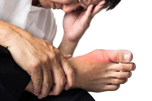 Accumulo di acido urico nei piedi