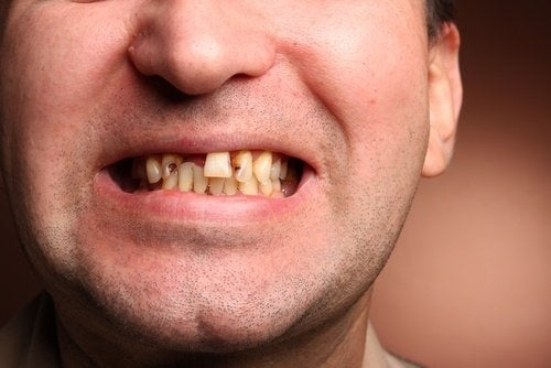Uomo senza denti