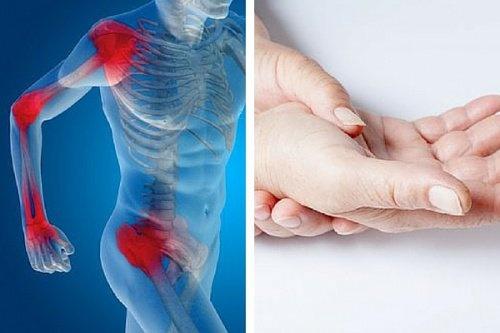 Artrite reumatoide: ecco i super cibi che alleviano i sintomi