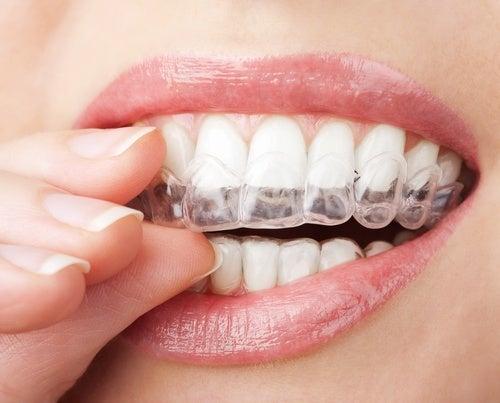 denti-apparecchio