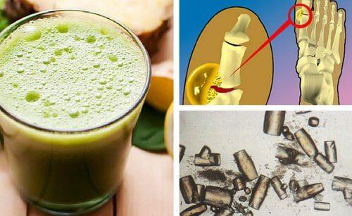 Dissolvere ed eliminare i cristalli di acido urico in modo naturale