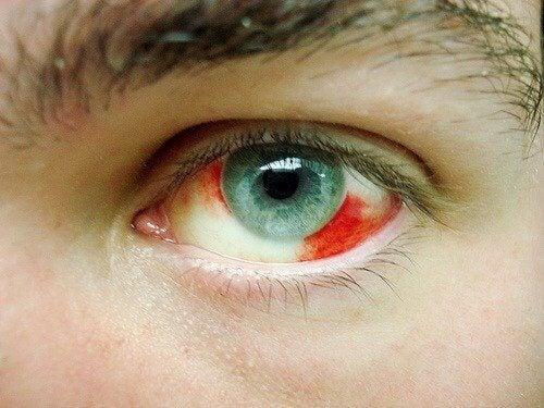 Emorragia agli occhi, quali sono le cause?
