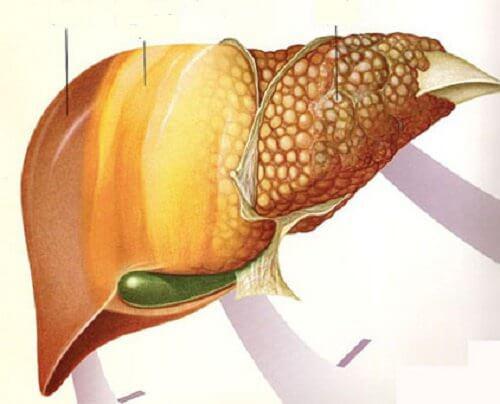 quale dieta devo seguire per curare il fegato grasso