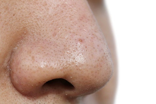 Rimuovere i punti neri con 5 maschere facciali