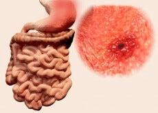 ulcere gastriche