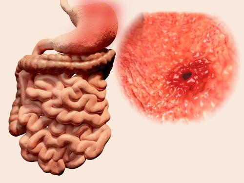 5 frullati naturali per alleviare le ulcere gastriche
