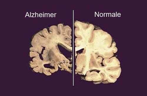 Cervello-con-Alzheimer-e-sano