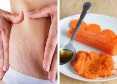 smagliature carote