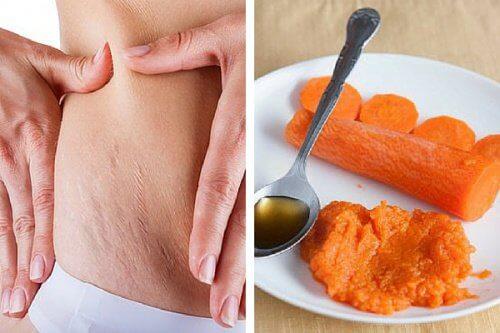 Rimedio a base di carote per attenuare le smagliature