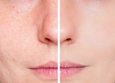 viso prima e dopo il trattamento al pomodoro