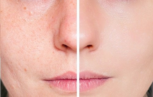 Trattamento al pomodoro per le pelli grasse e con acne