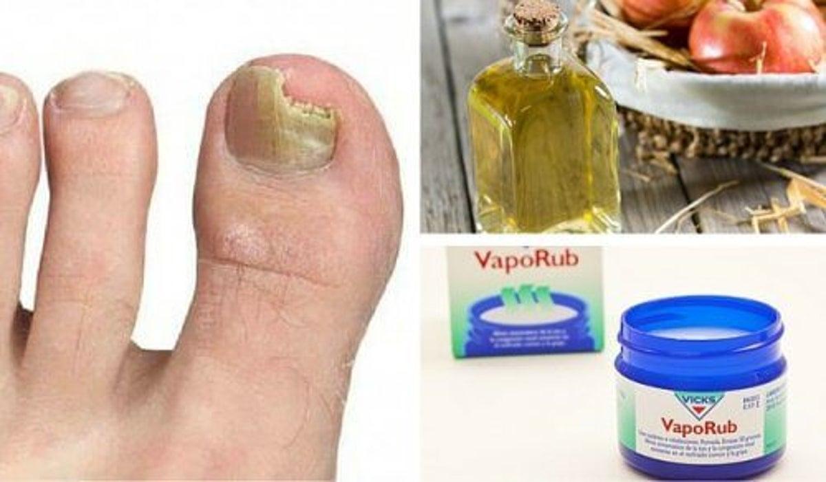 rimedi naturali per micosi unghie dei piedi