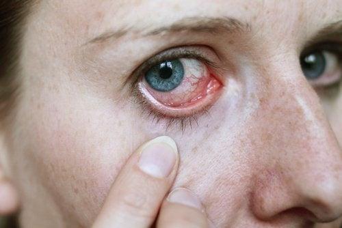 Dolore negli occhi cancro
