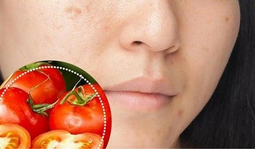 6 ingredienti naturali per attenuare le macchie del viso