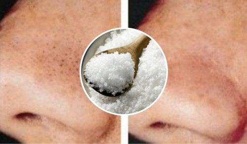 Punti neri e brufoli: come combatterli con il sale