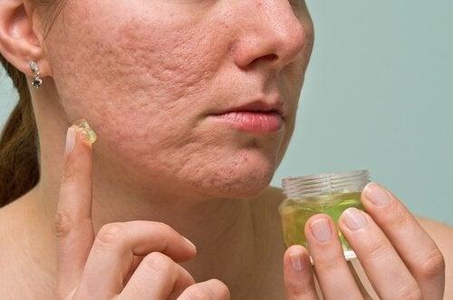 Trattamento contro l'acne