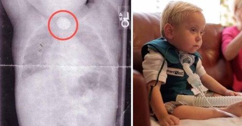 Bimbo con seri danni fisici dopo aver ingoiato una batteria a bottone