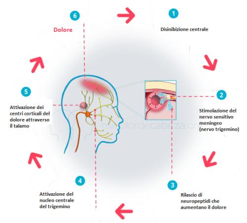 l'emicrania processo