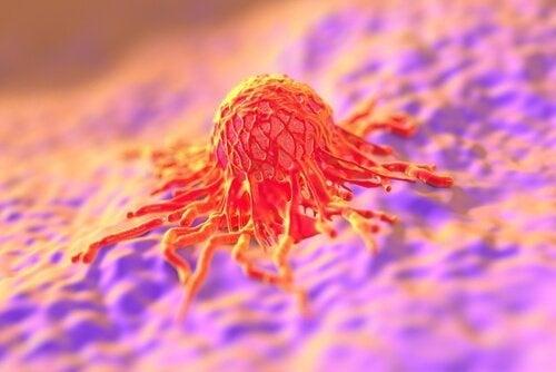 cellula tumorale cancro collo dell'utero