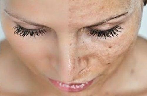donna con pelle sana e danneggiata a confronto