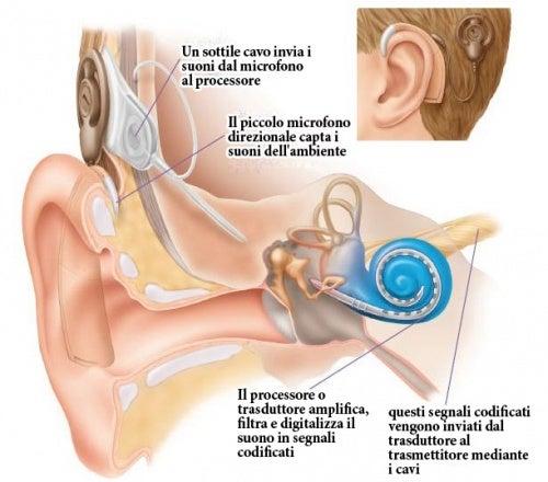 Impianto cocleare udito