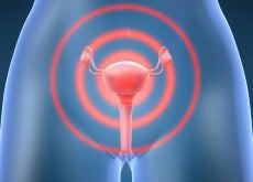 cancro collo dell'utero