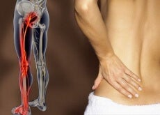 Dolore-nervo-sciatico-causato-da-sciatalgia