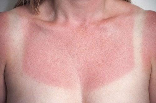 Donna con scottature solari