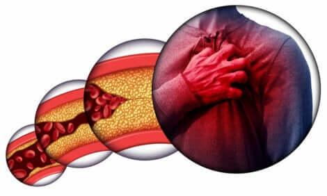 L'importanza di ridurre il colesterolo cattivo
