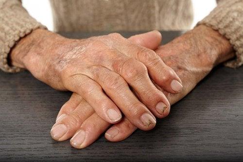 Artrite semi di lino
