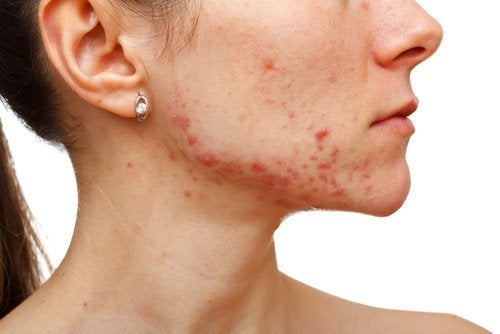 Combattere l'acne la cipolla