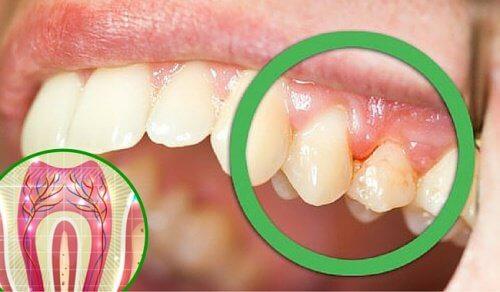 6 motivi per cui i denti possono farvi male