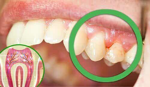 6 motivi per cui potete soffrire di mal di denti