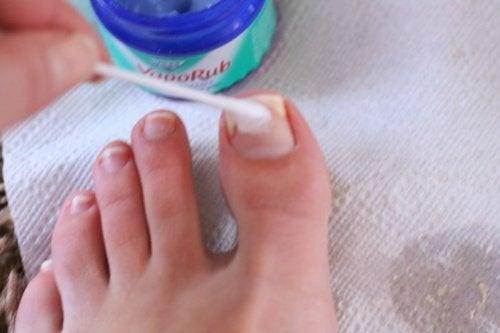 Vaporub su unghie del piede