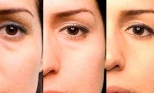 Consigli per eliminare le borse sotto gli occhi