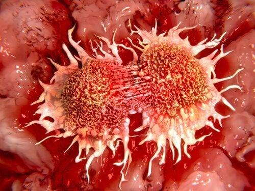 cellule cancerogene cancro al colon