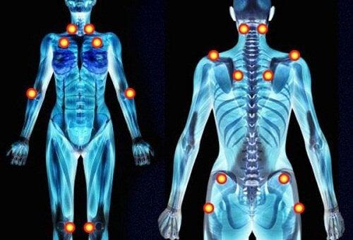 5 sintomi della fibromialgia