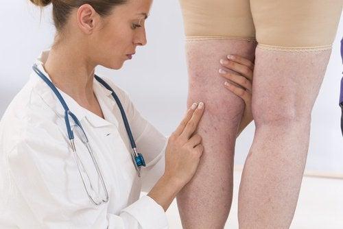 Dottotressa che controlla le gambe di una paziente