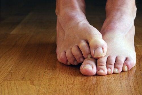 Eliminare i calli ai piedi