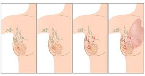 fasi cancro al seno