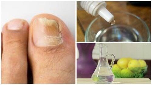 Antimicotico per le unghie da preparare in casa