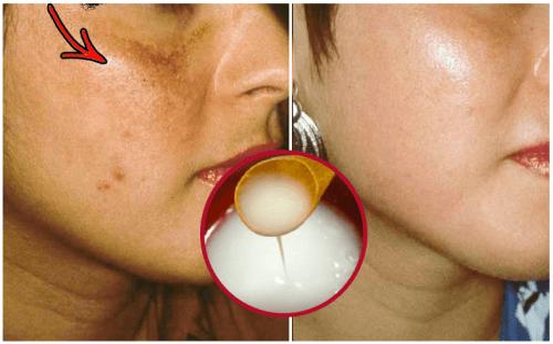 Crema naturale per sbiancare la pelle da fare in casa