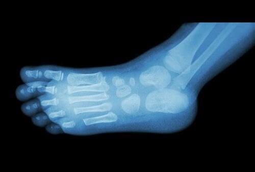 radiografia del piede