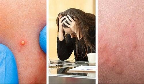 7 prove che indicano che lo stress vi sta danneggiando