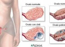 Cisti ovariche