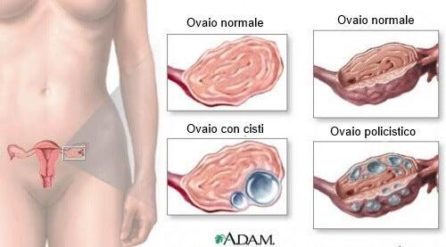 Cisti ovariche: 9 cose che ogni donna deve sapere