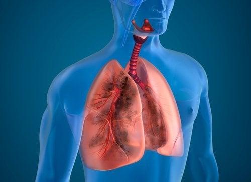 Polmoni di chi fuma